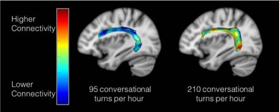 Groundbreaking Neuroscience Research Finds Talking with Young Children Improves Language Regions of Developing Brain